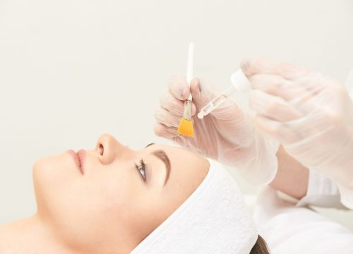 Chemical peels in NYC