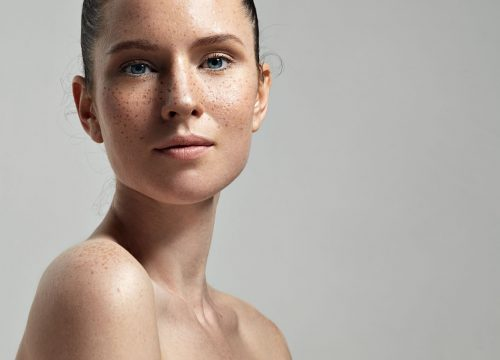 Woman with brown spots