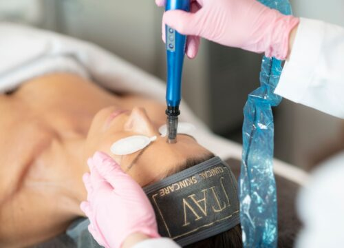Collagen Induction Treatments