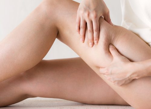 Woman's legs with cellulite