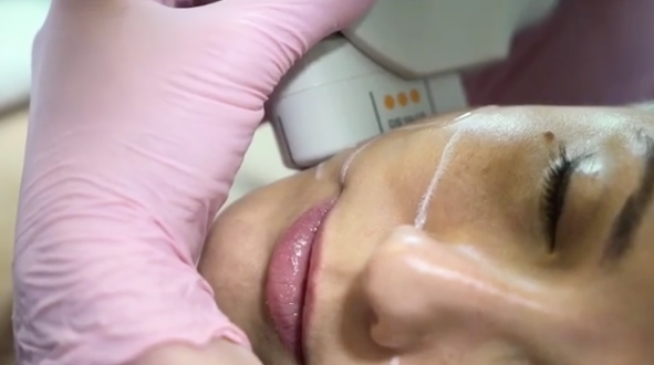 Woman receiving Ultherapy treatments