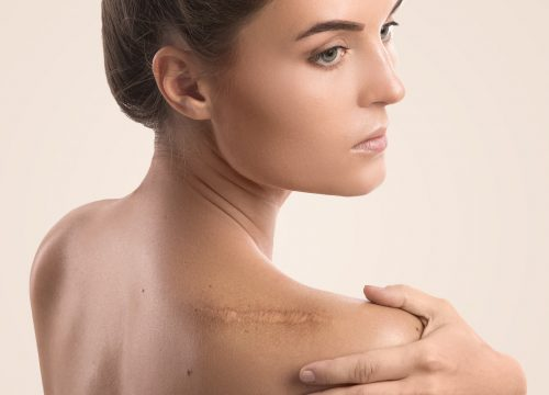 Woman with a shoulder scar