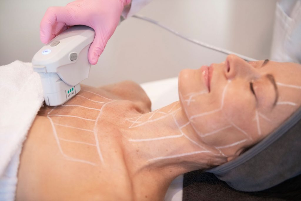 Ultherapy® body treatment on a JTAV patient