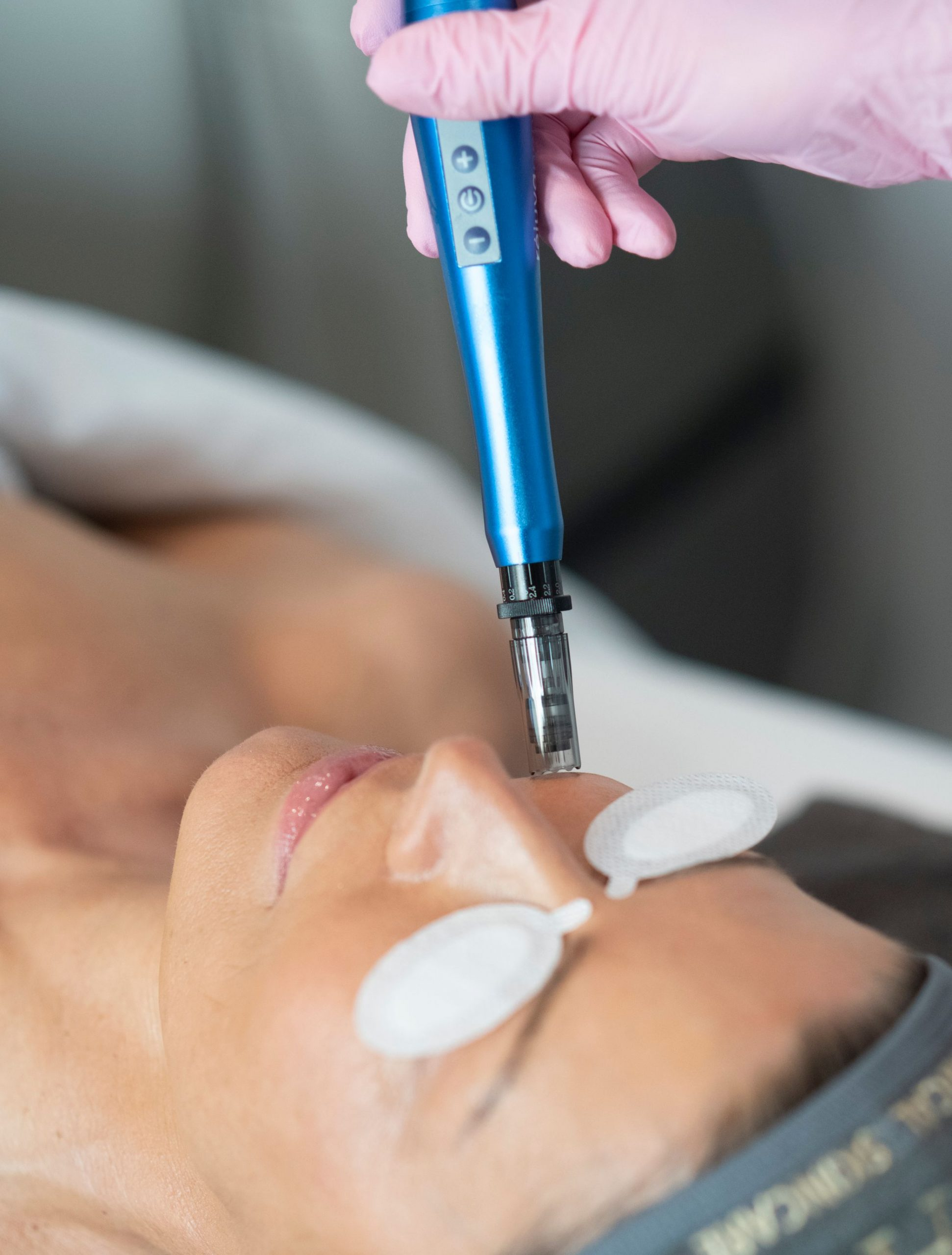 Woman receiving collagen induction treatments