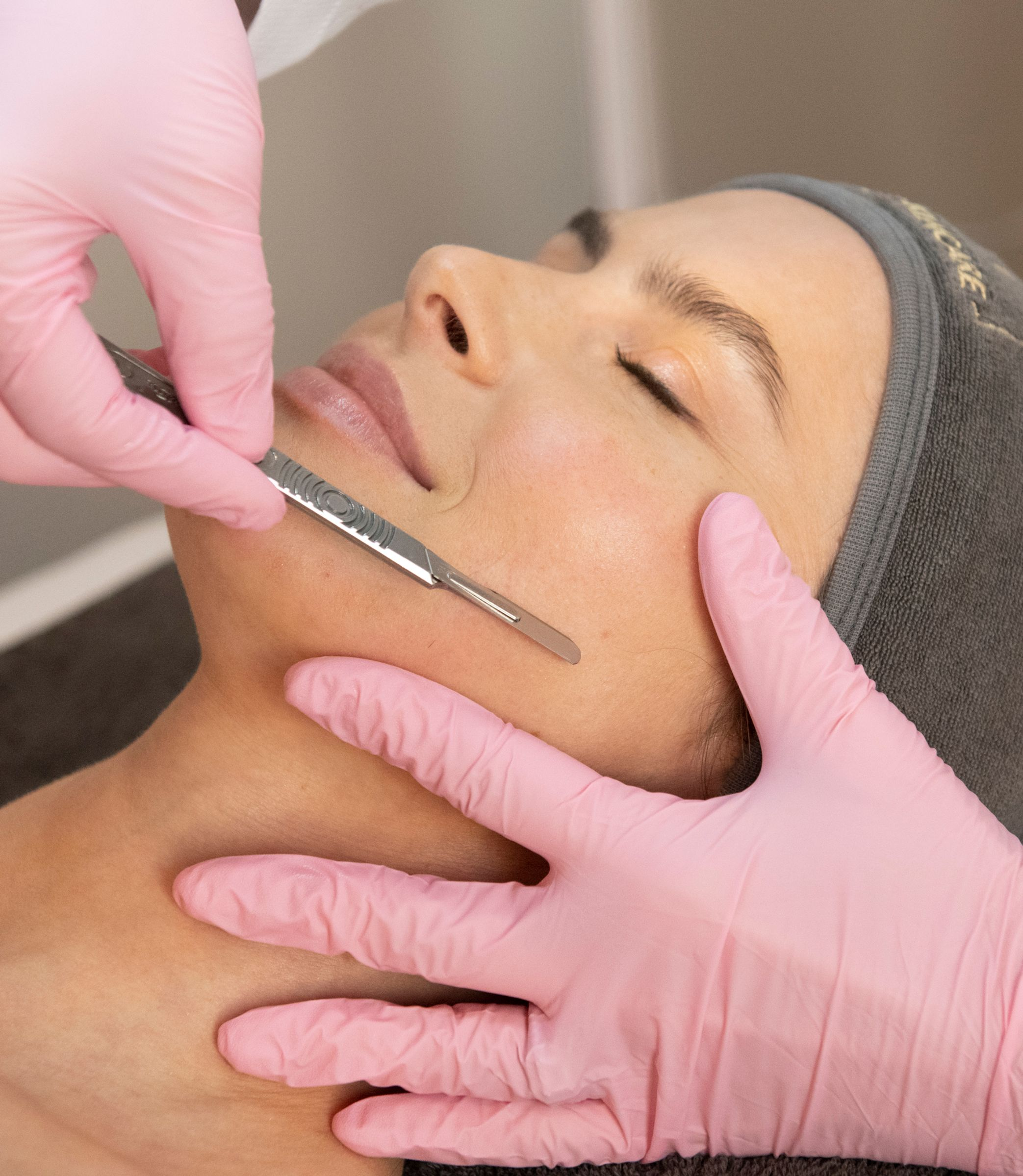 Woman getting a dermaplaning treatment