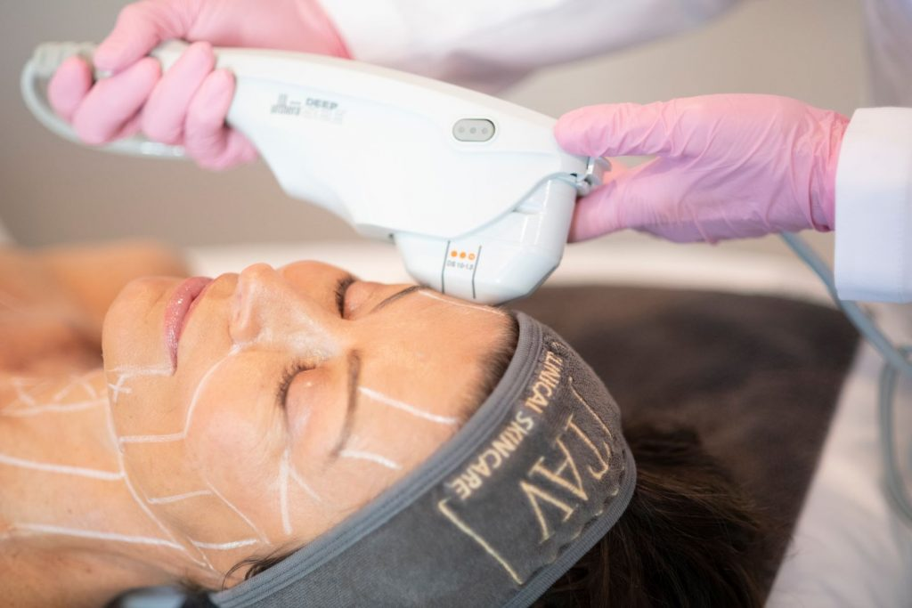 Ultherapy face treatments